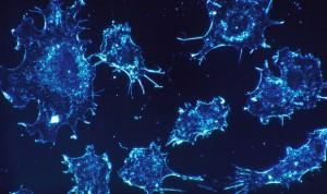 'Canibalismo' entre células cancerosas para hacerse resistentes a la quimio