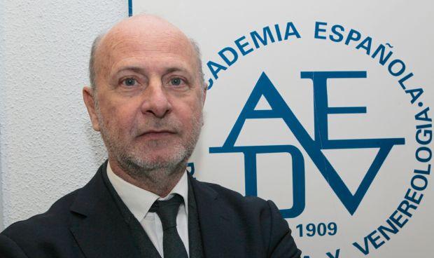 El número de españoles con psoriasis equivale a la población de Asturias