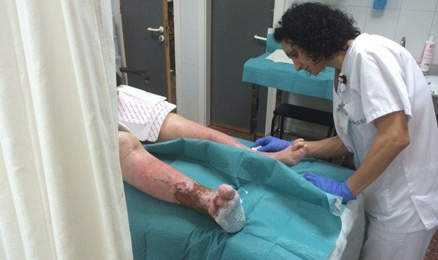 """""""El protocolo en manejo de heridas aporta autonomía a la Enfermería"""""""