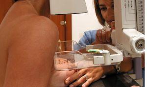 Escalofriante imagen de un cáncer de mama para combatir las pseudoterapias
