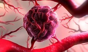 """""""Los Nobel de Medicina sentaron la base para terapias en cáncer renal"""""""