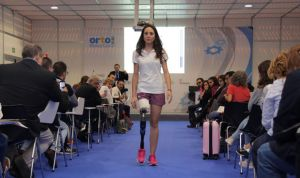 """""""Los encajes protésicos modernos dan movilidad y funcionan más tiempo"""""""