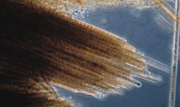 ¿Provocan tumores las microalgas de las playas canarias?