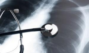 Un dispositivo hace 'trasplantables' pulmones que hasta ahora se desechaban
