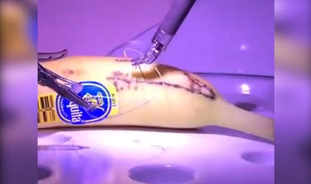 Operar un plátano a 8.000 km de distancia gracias a la tecnología 5G