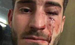 """Agresión homófoba a un enfermero: """"Tú no eres un hombre, eres maricón"""""""