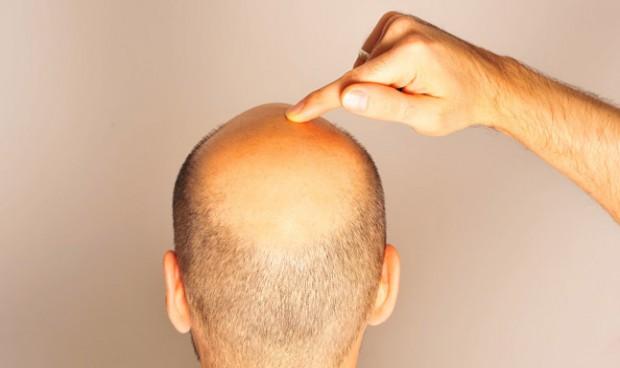 La alopecia frontal es la que más preocupa al paciente