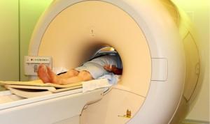 Confirmada la relación entre alzhéimer y microbiota intestinal