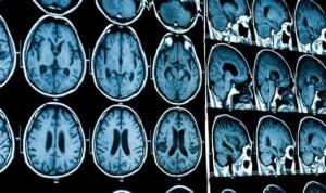 Las bacterias intestinales, asociadas con enfermedades neurodegenerativas