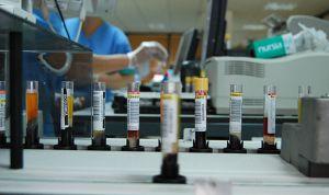Andalucía tiene en marcha 57 investigaciones en cáncer de colon