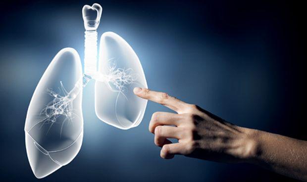 Así lucha el sistema inmune del pulmón contra la tuberculosis