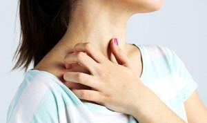 Asocian el crecimiento de las bacterias con la dermatitis atópica