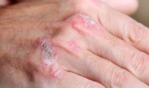 Asocian la artritis psoriásica con el desarrollo de diabetes tipo 2