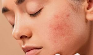"""Atacar los comedones """"invisibles"""", clave para la prevención del acné"""