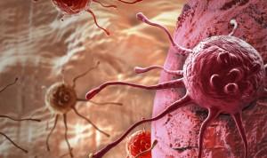 Aumentan los casos de cáncer por enfermedad del hígado graso no alcohólico