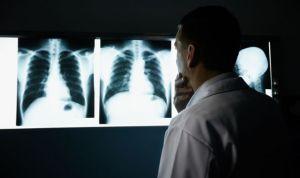 Avances en la terapia con células madre para fibrosis y EPOC