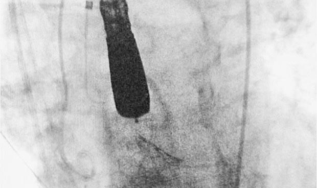 Badajoz implanta de forma pionera una nueva válvula aórtica percutánea