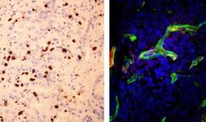Un biomarcador predice la eficacia de la inmunoterapia en cáncer