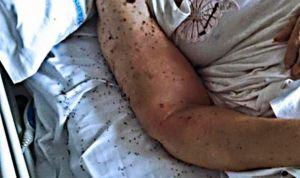 Camas de hospital con insectos: ¿quién ha deteriorado la sanidad pública?
