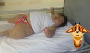 Campaña en redes para dar tratamiento al bebé más gordo del mundo