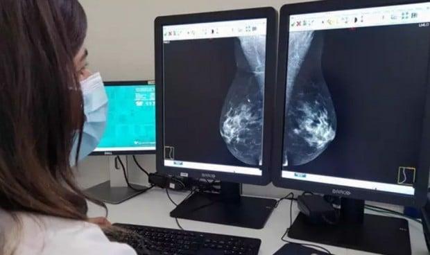 El microambiente óseo reduce la metástasis del cáncer de mama