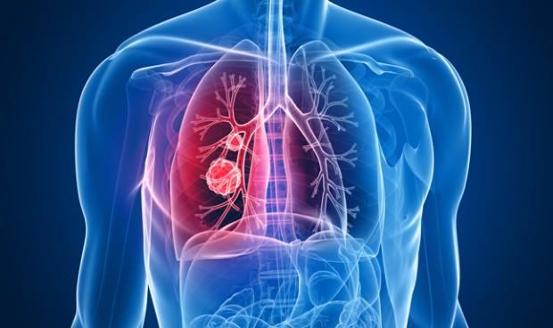 Una proteína, señalada como nueva diana para tratar el cáncer de pulmón