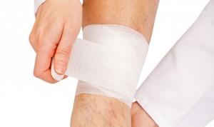 Tromboembolismo venoso, segunda causa de muerte prevenible con cáncer