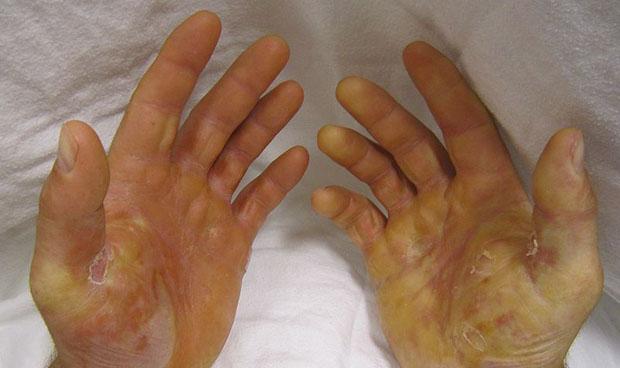 Células madre contra las heridas de la piel de mariposa