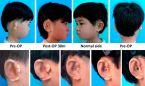 Científicos chinos implantan orejas con células cultivadas por impresión 3D