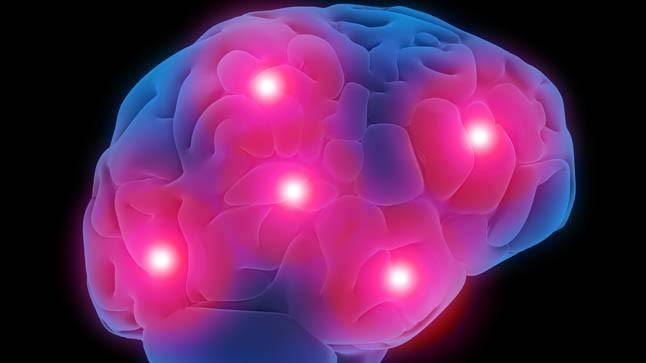 Cinco genes vinculan demencia por cuerpos de Lewy, alzhéimer y párkinson
