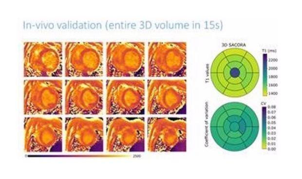 El CNIC desarrolla una técnica para obtener información del tejido cardíaco