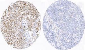 CNIO descubre una fórmula para detectar el cáncer de mama triple negativo