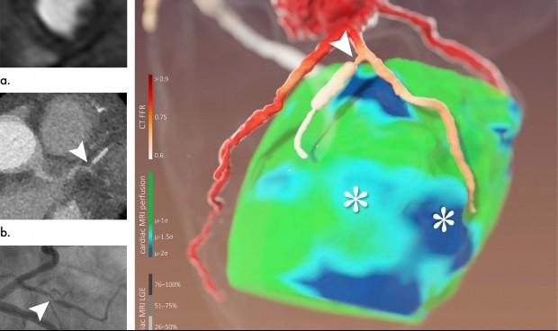 Combinan TAC y resonancia en 3D para diagnosticar enfermedades coronarias