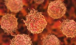 Combinar metformina y un antihipertensivo es eficaz frente a tumores