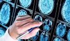 Consiguen bloquear una proteína fundamental en el desarrollo del alzhéimer