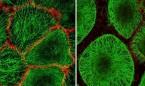 Consiguen crear piel con vello a partir de células madre humanas