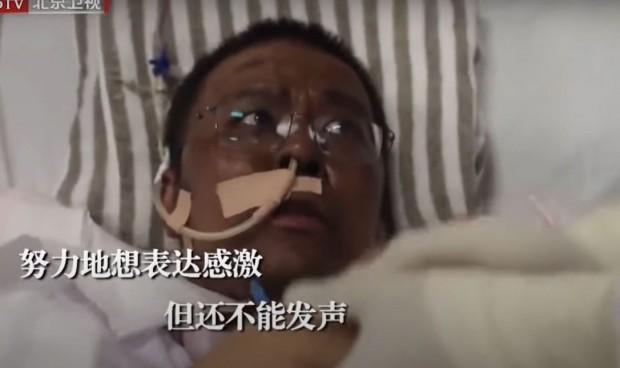 Coronavirus: médicos chinos despiertan del coma con la piel de color negro