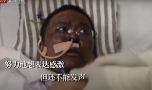 Coronavirus: muere el médico chino que despertó del coma con la piel negra