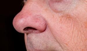 Coronavirus: síntomas de pérdida de olfato, gusto y dolor de garganta