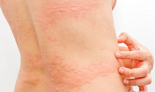 Coronavirus síntomas: efectos en la piel de hasta 150 días