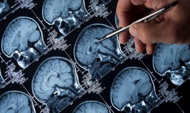 Covid: crece la frecuencia de crisis epilépticas en el 30% de los pacientes