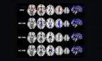 Covid-19: un estudio relaciona el SARS-CoV-2 con pérdidas de memoria