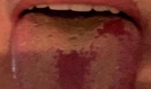 Covid-19: un nuevo síntoma en la lengua pone
