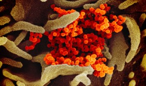 Covid-19: el peor dato de contagios de coronavirus en España en 3 meses