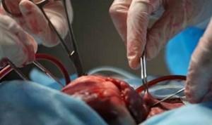 La actividad de trasplantes cae en Europa hasta un 80% por el Covid-19