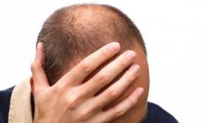 Covid: la calvicie se relaciona con riesgo en un estudio
