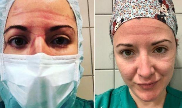 Covid: así ha cambiado el rostro de una médica tras un año de pandemia