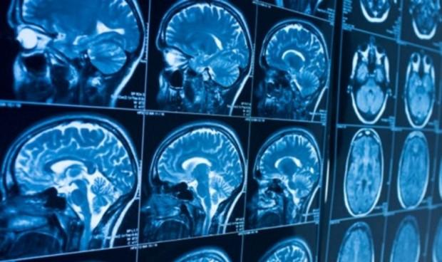 El 80% de los ingresados con Covid desarrollan problemas neurológicos