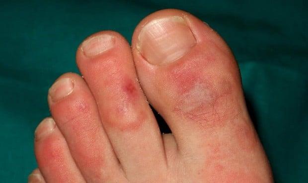 Descartado el Covid-19 como causa de lesiones dermatológicas en niños