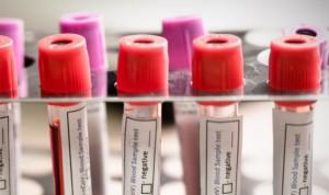 Covid persistente: el 52% de pacientes no tuvo acceso adecuado a PCR